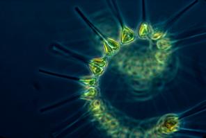 Phytoplankton (Credit: NOAA)